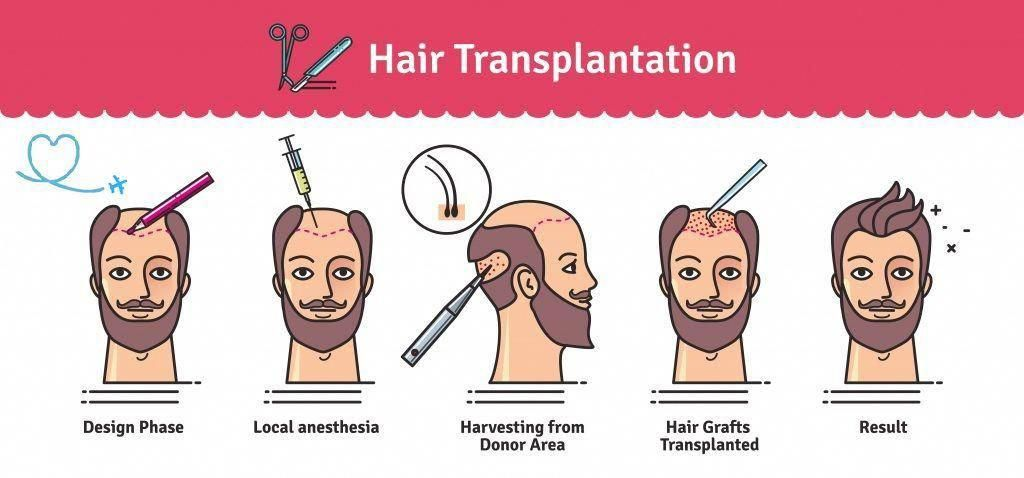 Advanced Hair Restoration Techniques at Best hair transplant, One of the best FUE and FUT transplant Centres in Hyderabad