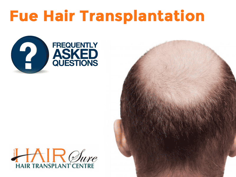 Fue Hair Transplantation – Frequently Asked Questions