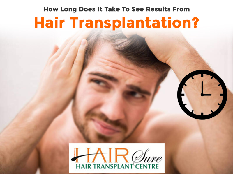 How Long Does It Take To See Results From Hair Transplantation?