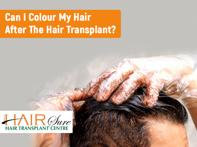 Can I Colour My Hair After Hair Transplantation?