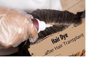 Ask FAQs to your Doctors Regarding Hair colour after Hair transplant, One of the best Hair Transplant Specialists in Hyderabad