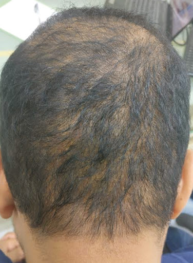 Make an appointment with Dr Shashidhar for hair colour dyes after hair transplant, One of the best hair transplant treatment doctors in Hyderabad