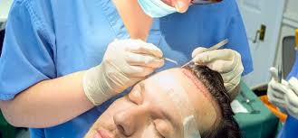 Advanced hair transplantation techniques at Best Hair Transplant, One of the best Centres for hair restoration in Hyderabad