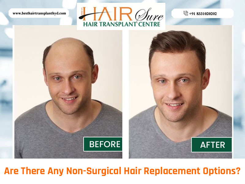 Are There Any Non-Surgical Hair Replacement Options?