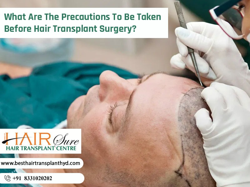 What Are The Precautions To Be Taken Before Hair Transplant Surgery?