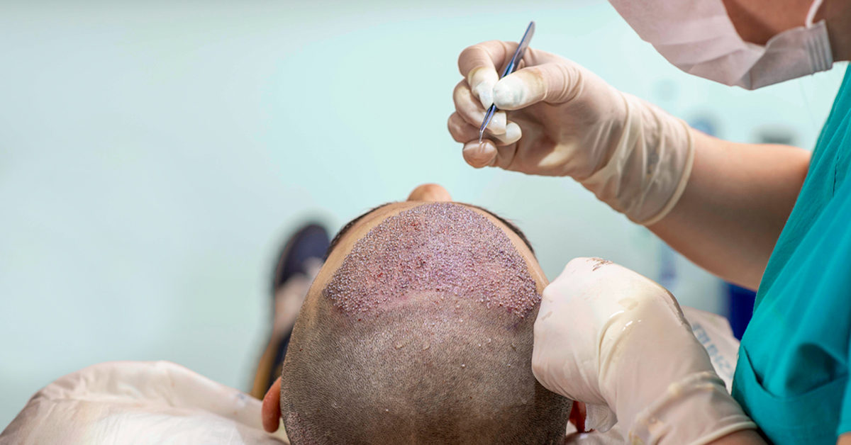 Micrografting hair transplant surgery in Hyderabad, hair treatment Doctors near me