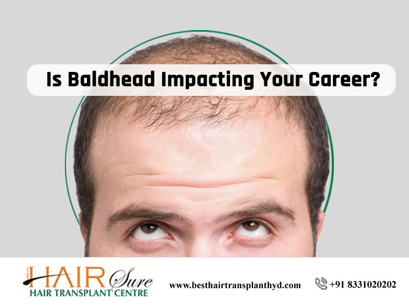 Is Baldhead Impacting Your Career?