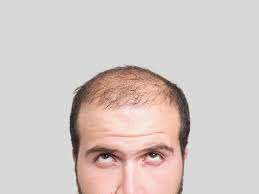 Men Baldness treatment in Hyderabad, hair loss clinic near me Hitech city