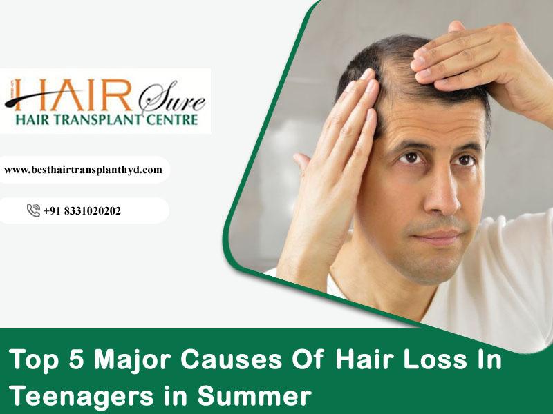Top 5 Major Causes Of Hair Loss In Teenagers in Summer