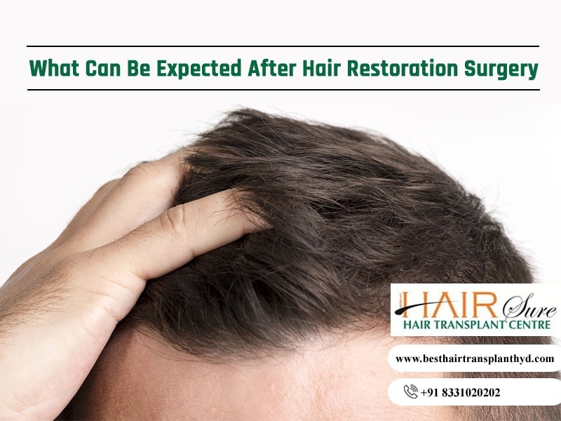 What Can Be Expected After Hair Restoration Surgery