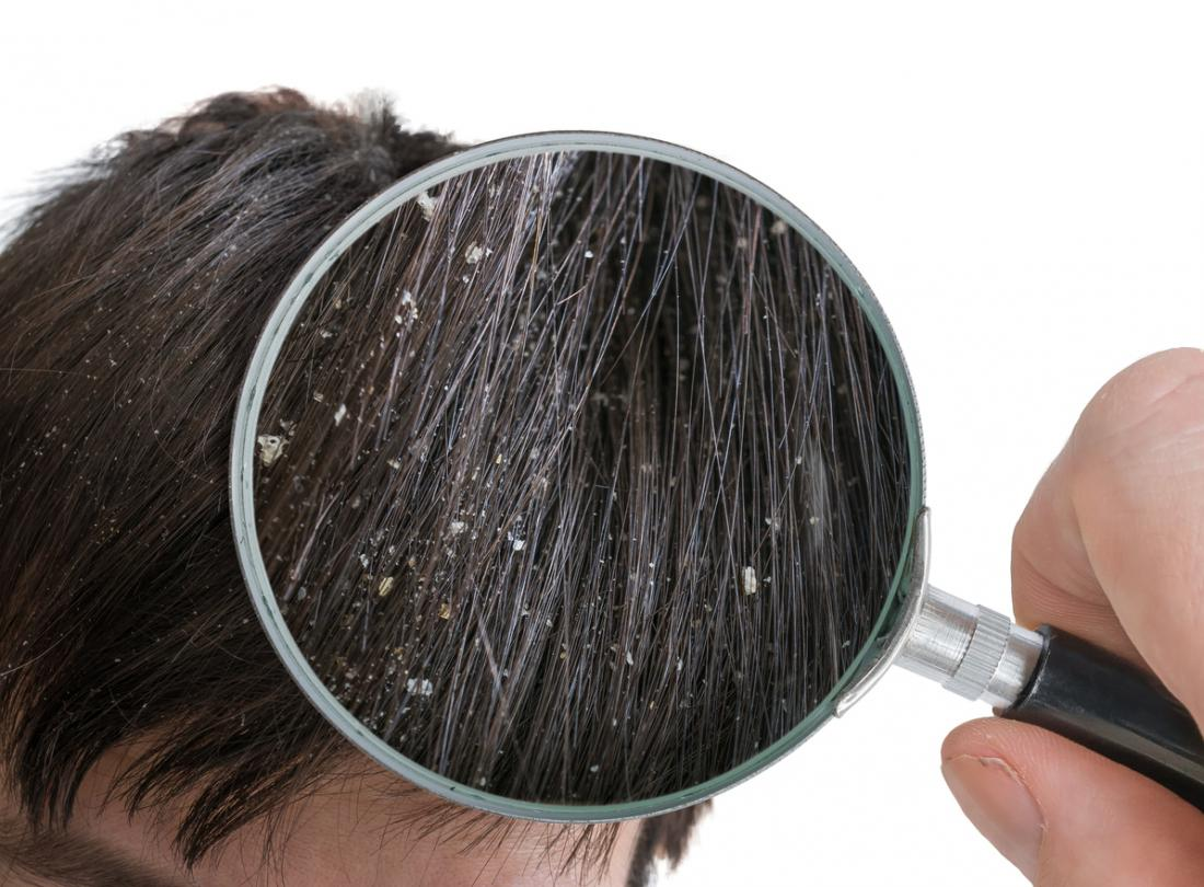 Dandruff removal and dry Scalp treatment in Hyderabad, hair loss treatment near me