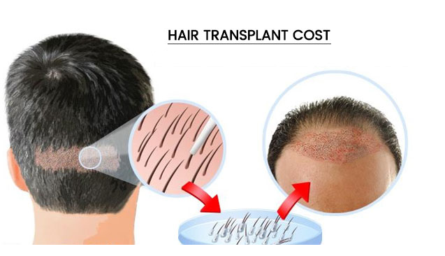 Easier and cheapest treatment for men baldness in Hyderabad, best hair transplant specialty center near me