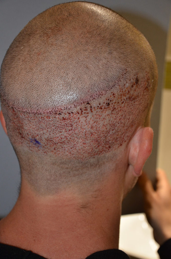 Things You Should Never Do After A Hair Transplant at Best Hair Transplant, hair restoration doctor near me Hitech city