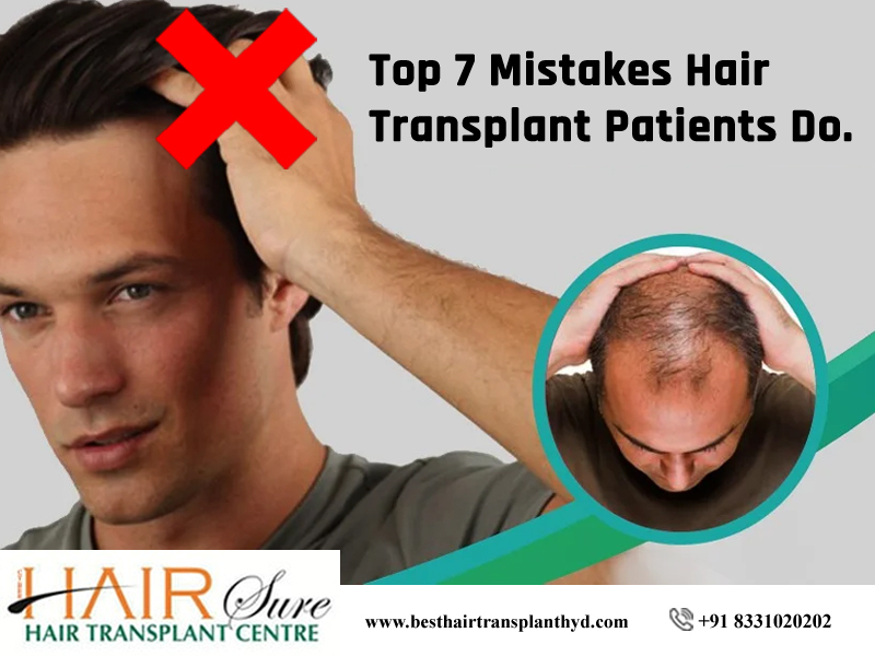 Top 7 Mistakes Hair Transplant Patients Do