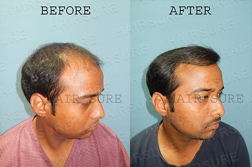 Best hair transplantation results-oriented center in Hyderabad, hair restoration specialist near me