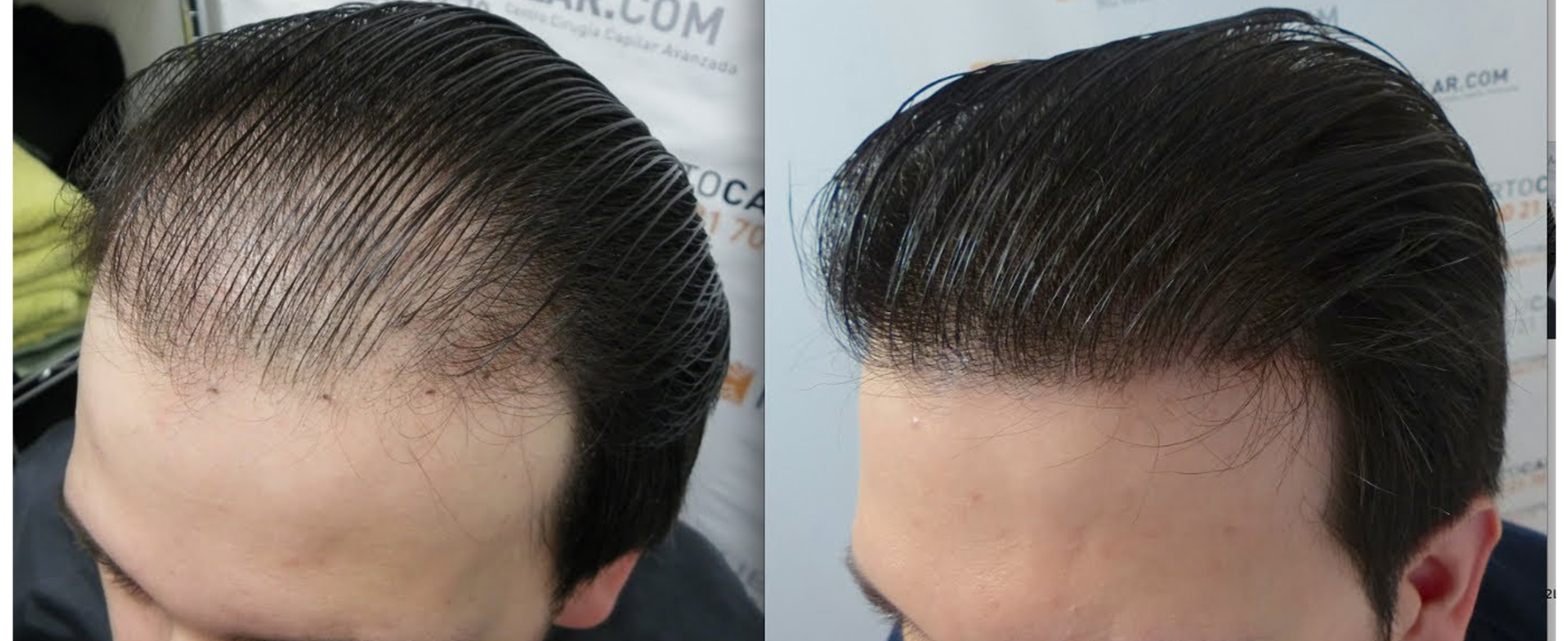 Best clinic for men baldness treatment in Hyderabad, hair loss treatment doctor near me