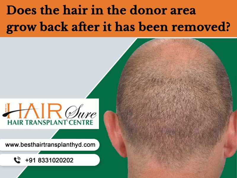 Does the hair in the donor area grow back after it has been removed?