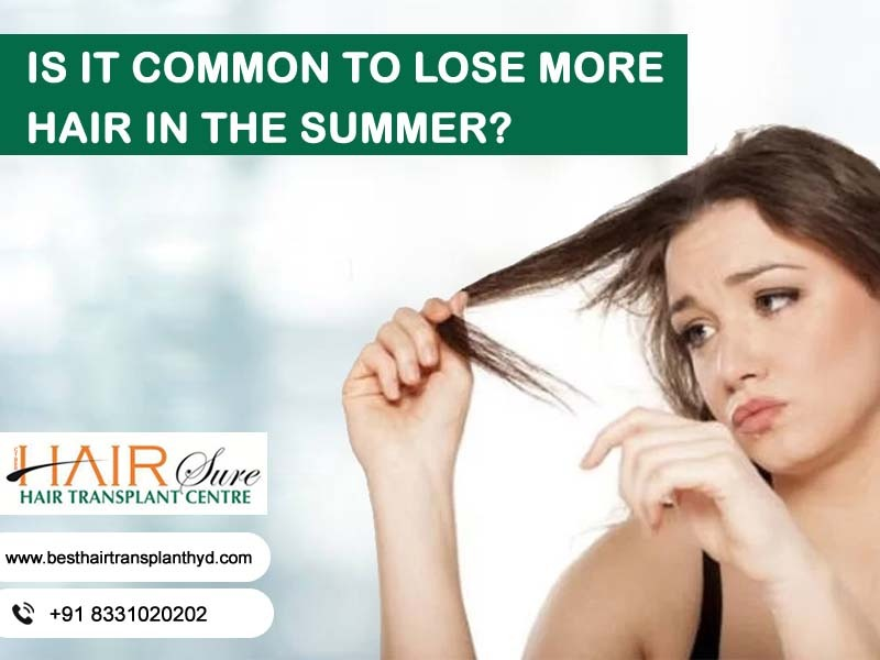 Is It Common To Lose More Hair In The Summer?