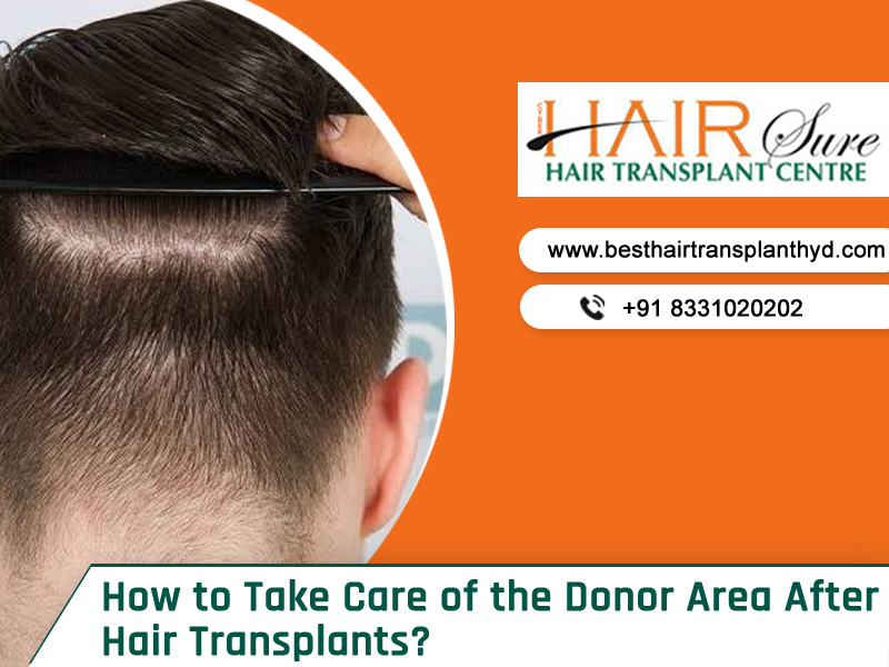 How to Take Care of the Donor Area After Hair Transplants?