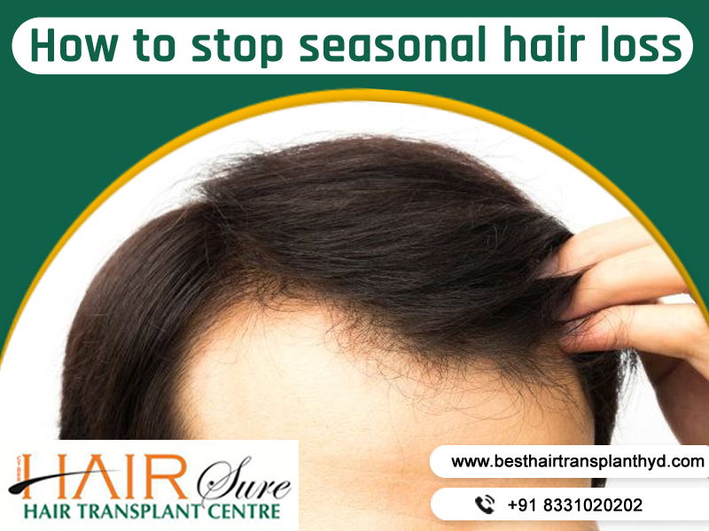 How to stop seasonal hair loss