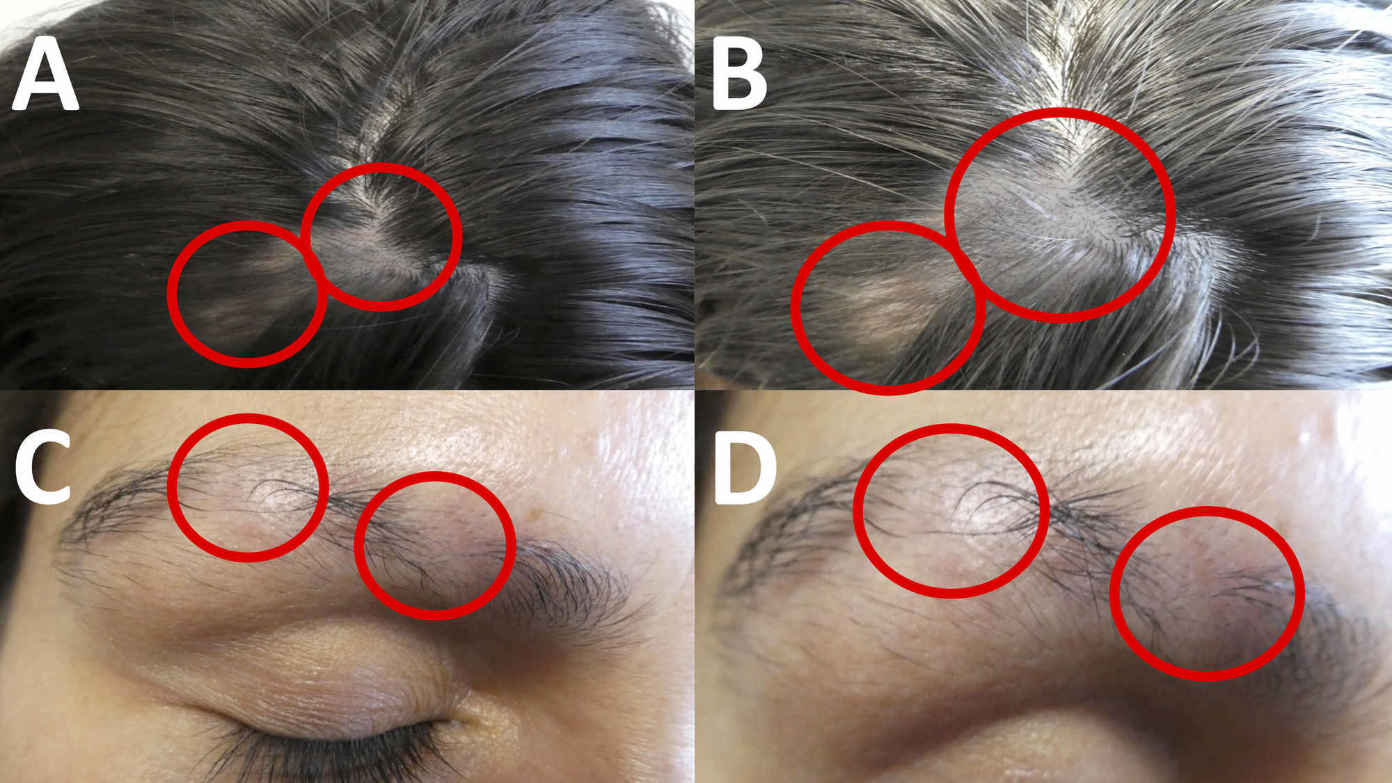 Best Lupus Alopecia operation in Hyderabad, non-surgical hair restoration near Kothapet