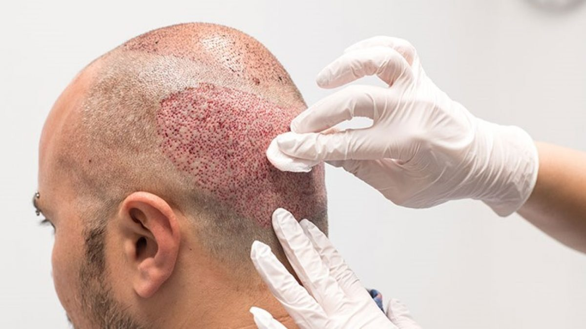 Top things to avoid after Hair Transplant procedure at Best Hair Transplant Clinic, hair restorations doctors near Hitech city, Hyderabad