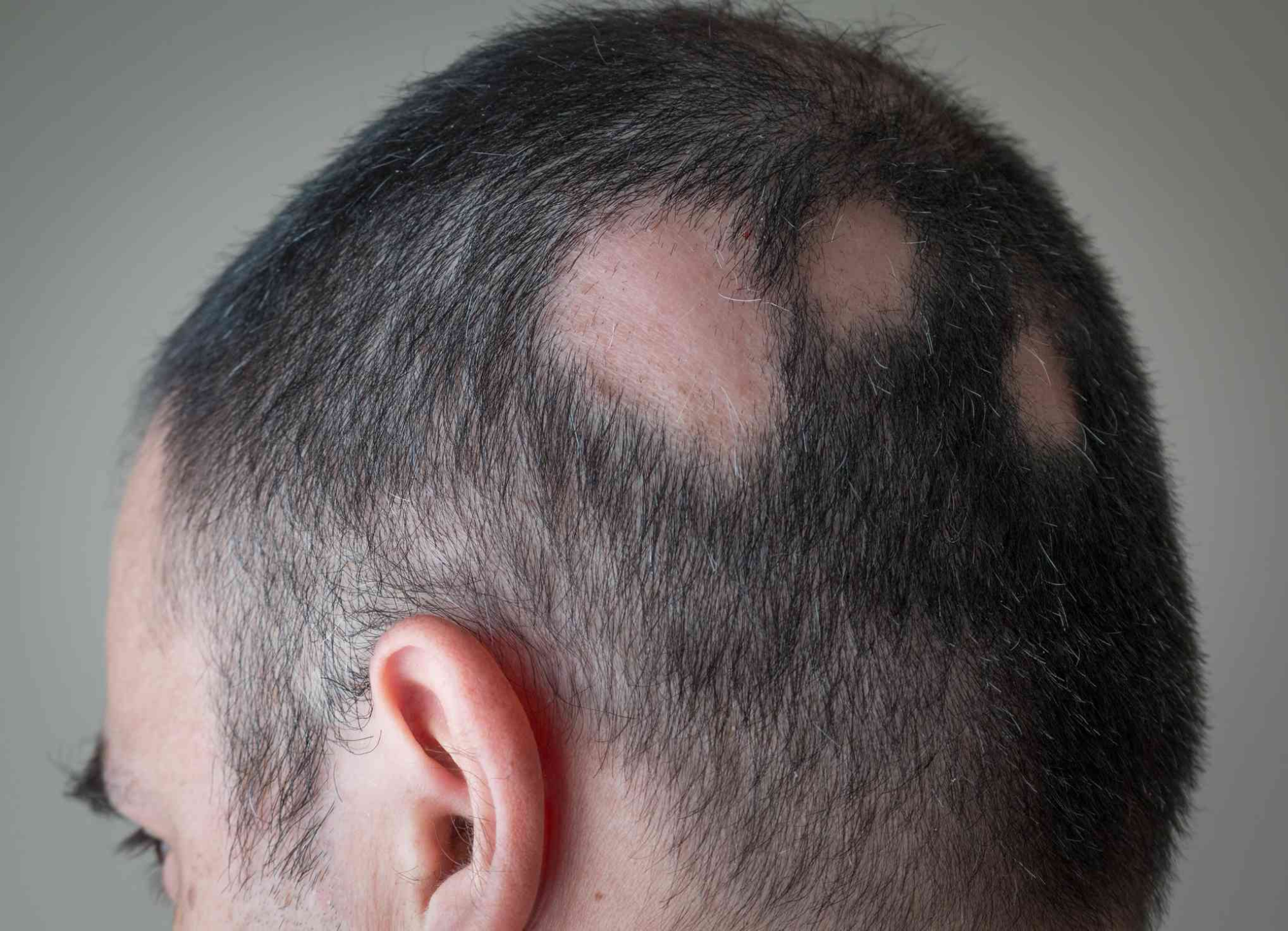 Consult to choose the best choice for Alopecia treatment at Best Hair Transplant, FUE hair restoration near Madhapur