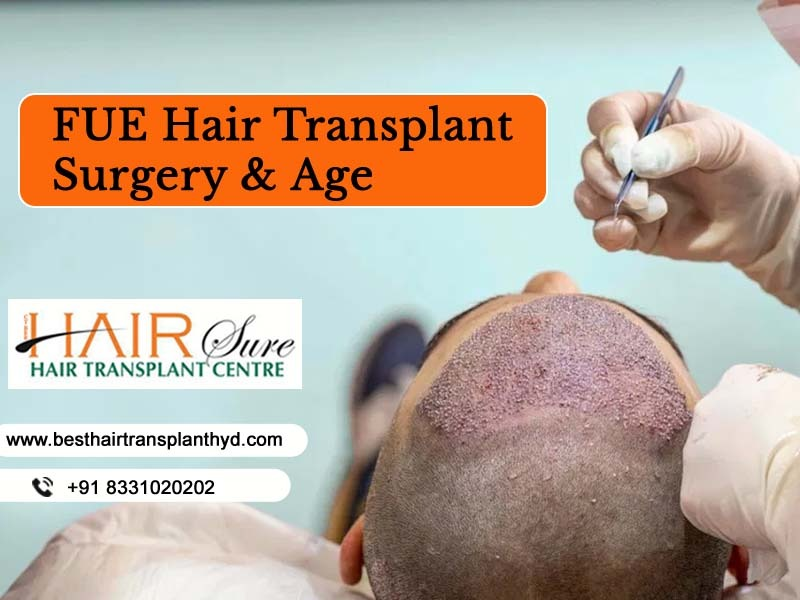 FUE Hair Transplant Surgery & Age