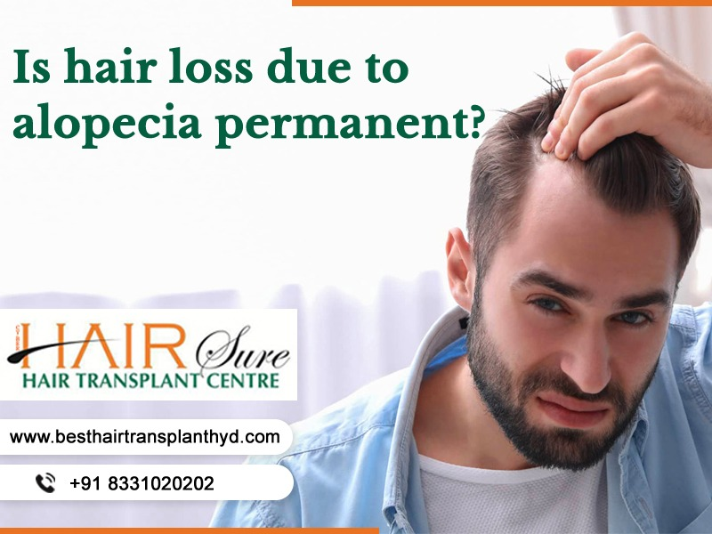 Is hair loss due to alopecia permanent?