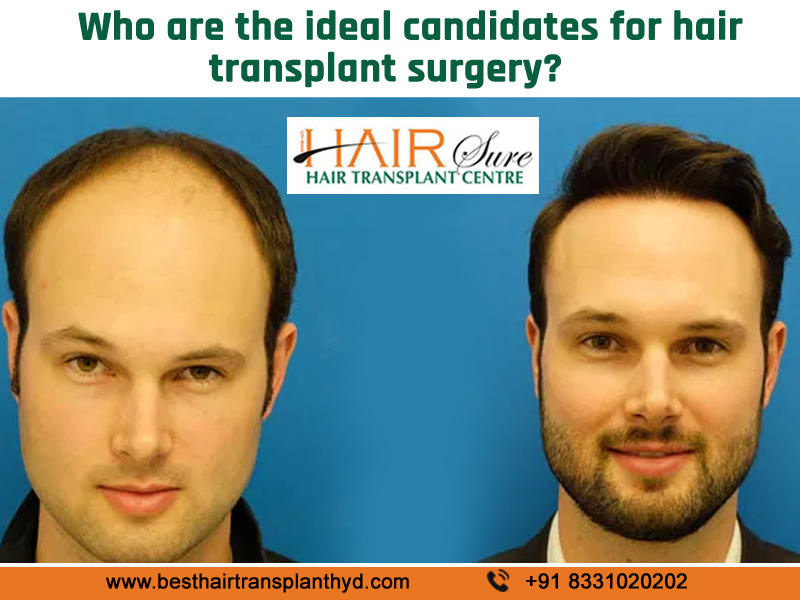 Who are the ideal candidates for hair transplant surgery?