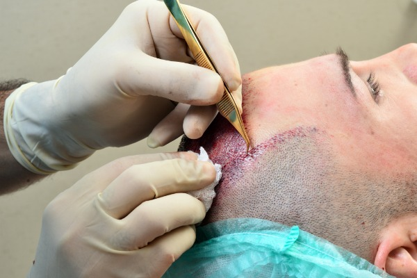 Best fue hair transplant surgeon in Hyderabad, consult Cyber Hair sure to know the cost of FUE hair transplant