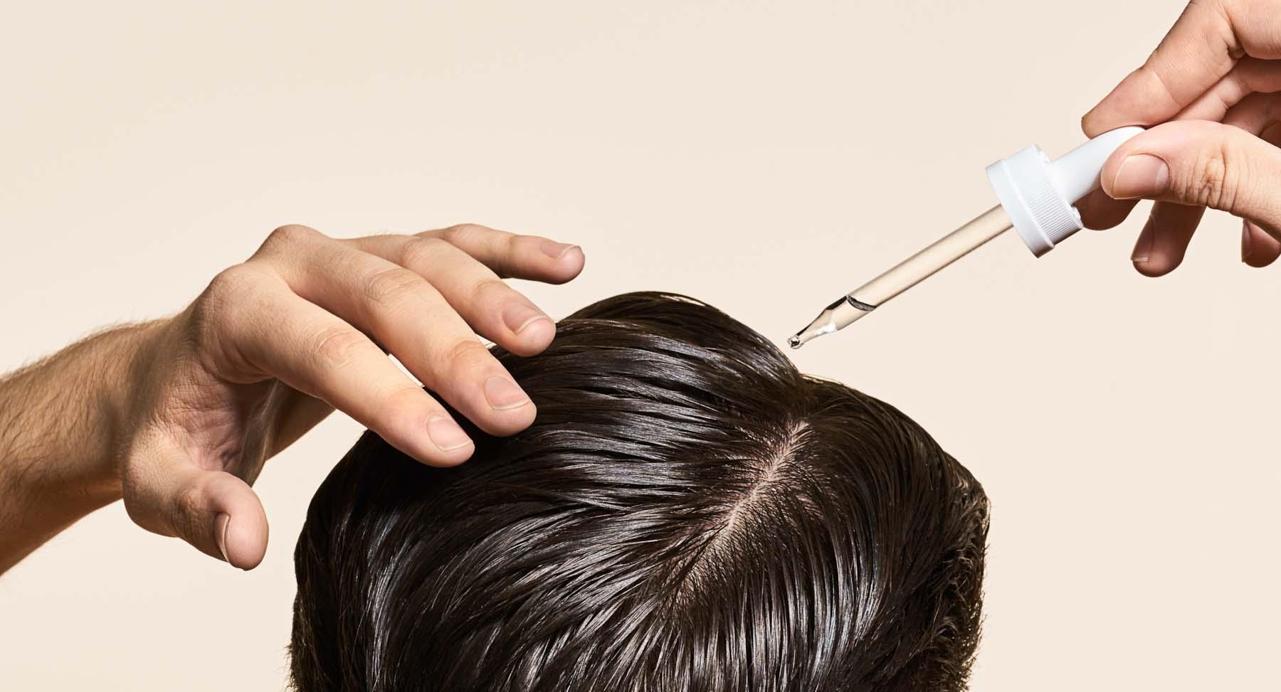 Advanced hair transplant techniques in Hyderabad, hair transplant center near Madhapur