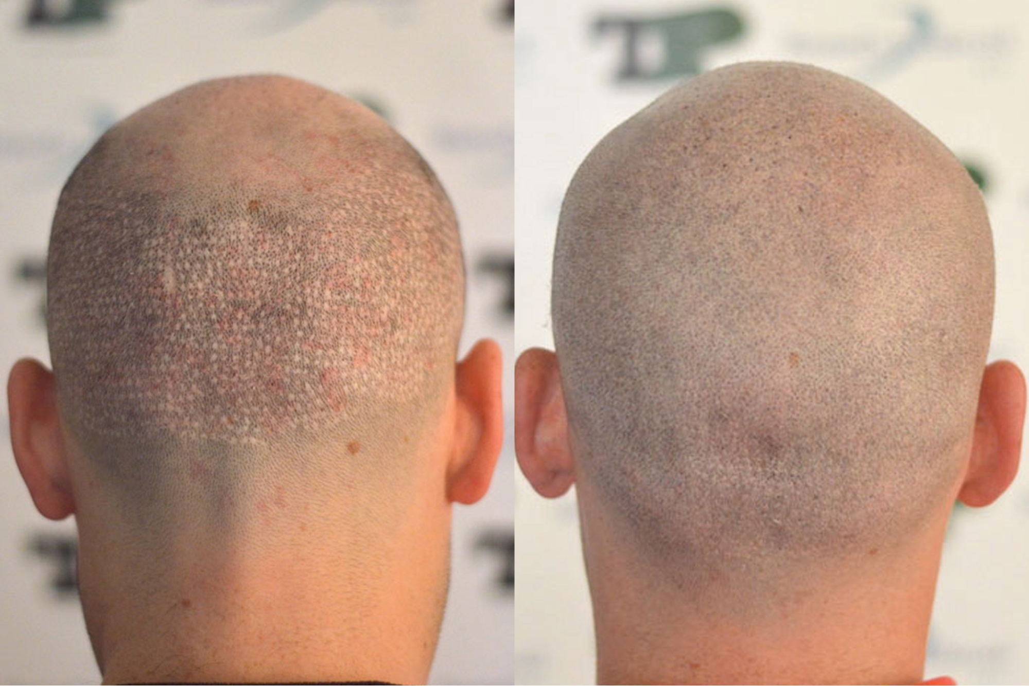 Best FUE hair transplant in Hyderabad, non-surgical hair replacement near Manikonda