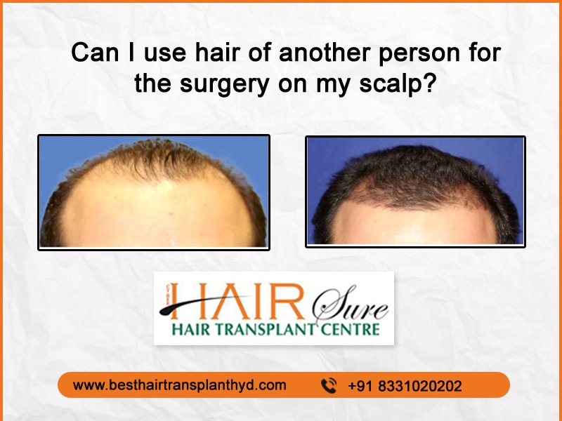 Can I use the hair of another person for the surgery on my scalp?