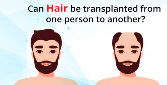 Best Hair transplantation surgery for men and women bald head in Hyderabad, fue hair replantation specialist near Madhapur