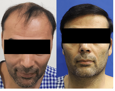 Consult to know the best suitable donor for your hair transplantation at Cyber Hair Sure, a hair restoration clinic near Gachibowli
