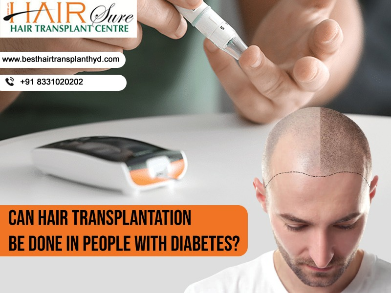 Can hair transplantation be done in people with diabetes?