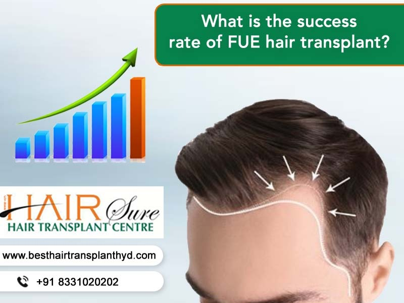 What Is The Success Rate Of FUE Hair Transplantation?