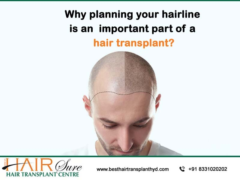 Why planning your hairline is an integral part of a hair transplant?